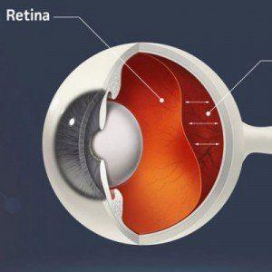 retina-square-300x300-2251199